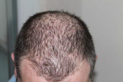 Comment fonctionne une greffe de cheveux ?